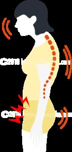 股関節症を招く悪い姿勢